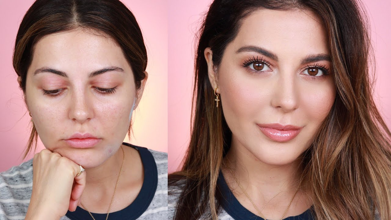 Watch How to Look Your Best when Dealing with Allergies video
