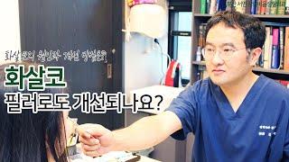 [부산 성형외과]화살코 필러로도 개선되나요?