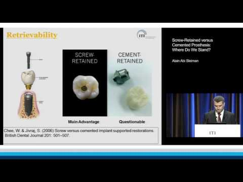 Screw-Retained versus Cemented Prosthesis: Where Do We Stand? | Alain Abi Sleiman