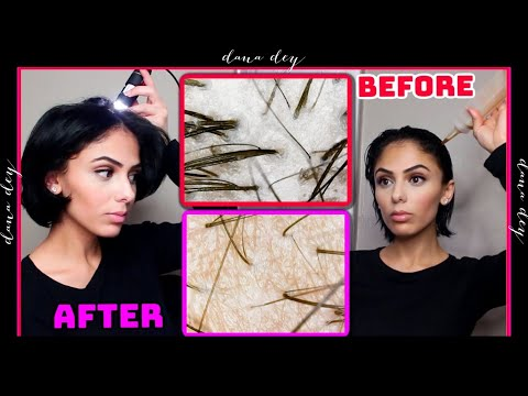 Exfoliating My Scalp Under A Microscope - Scalp Detox Treatment Before & After (INSANE)