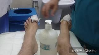 Tırnak batması emeliyatı sonrası // İLK PANSUMAN