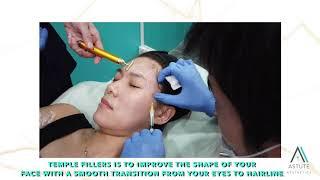 Temple Filler | Astute Medical Aesthetics & Laser Clinic