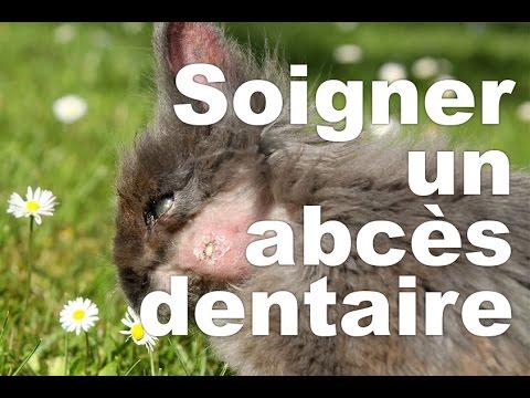 abc�s dentaire gomme tumeur masse ou une tumeur sur les gencives