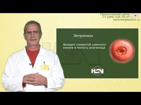Эрозия шейки матки, эктропион, лейкоплакия
