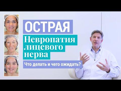 Паралич Белла: Что делать и чего ожидать при острой невропатии (неврите) лицевого нерва