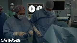 Fragmentation et Extraction d'un calcul rénal par urétéroscopie souple/Laser - Carthagène