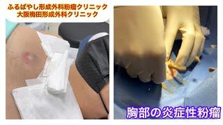 胸部の炎症性粉瘤 ブログでも粉瘤について詳しく解説してます。ふるばやし形成外科粉瘤クリニック東京新宿院 大阪梅田形成外科クリニック
