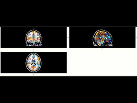"""BOLD spontaneous activity - """"resting-state"""" fMRI"""