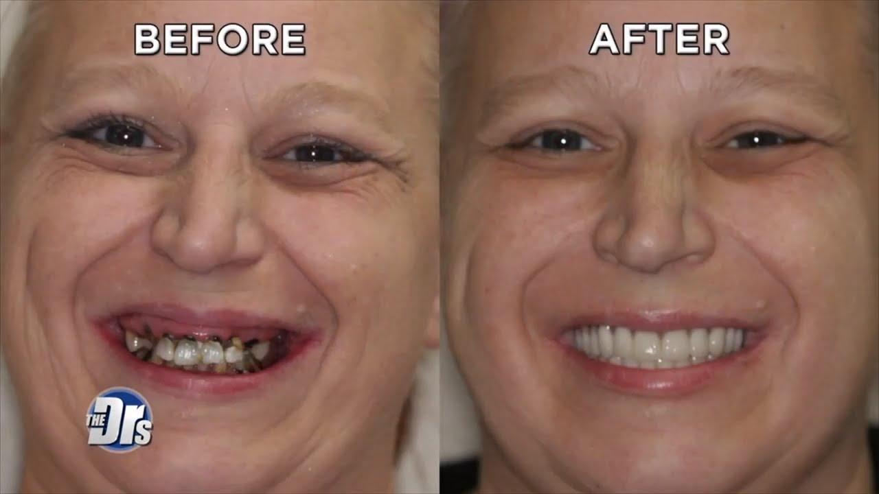 Woman Says Goodbye to Soda Smile and Hello to Pearly Whites