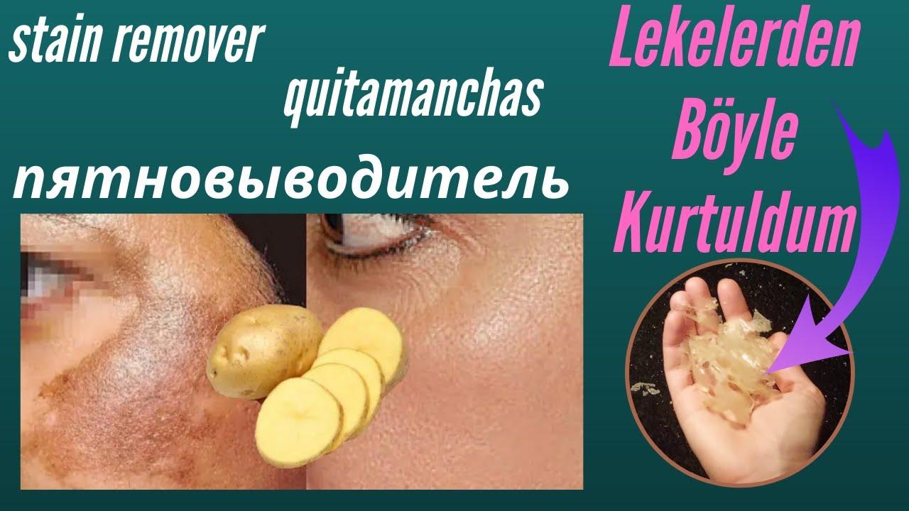 Patates.! Botoks'tan bir milyon kat daha güçlü cilt lekelerini ve kırışıklıkları giderir