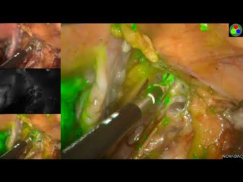 sentinel lymph node mapping with laparoscopic surgical stagi