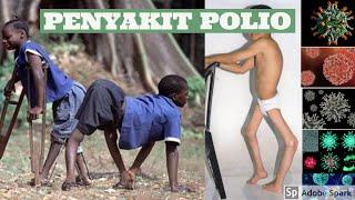 #faktakita PENYAKIT POLIO MEMBUNUH!.