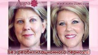 видео Мезонити для подтяжки кожи фирмы