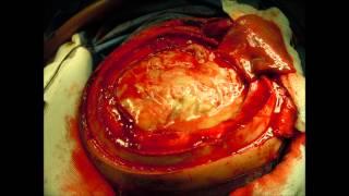 Hidrosefalus adalah penumpukan cairan di rongga otak, sehingga meningkatkan tekanan pada otak. Pada .