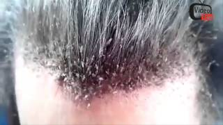 DISGUSTING MASSIVE HAIR LICE INFESTATION