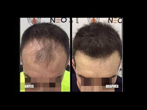 Resultado y proceso de un injerto de cabello en España