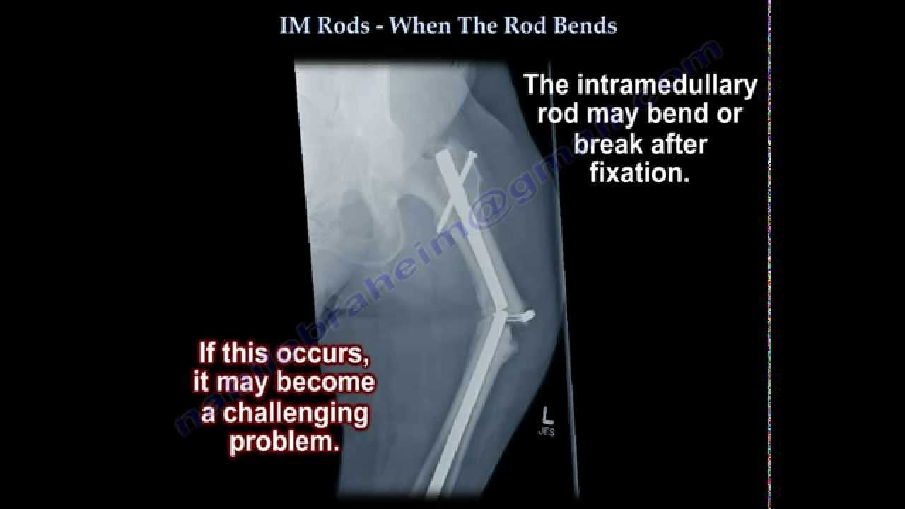 IM Rods, When The Rod Bends - Everything You Need To Know - Dr  Nabil  Ebraheim