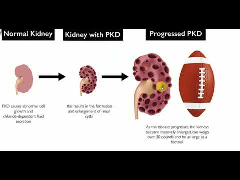 PATHOLOGY LECTURES , Kidney , POLYCYSTIC KIDNEY DISEASE ...