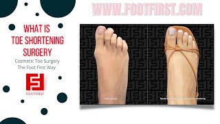Toe Shortening And After Results