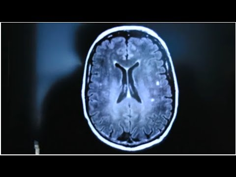 how to avoid stroke and heart disease