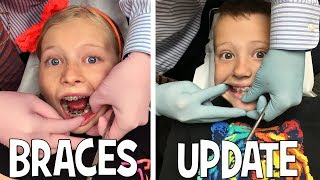 We Are Braces Twins!!