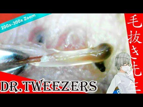 310 [200x Zoom] Shimmering hair like slime Dr. tweezers 毛抜き先生の角栓や毛根
