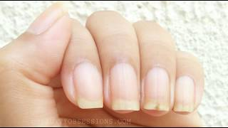 How to file Nails in Square shape | Snigdha P.