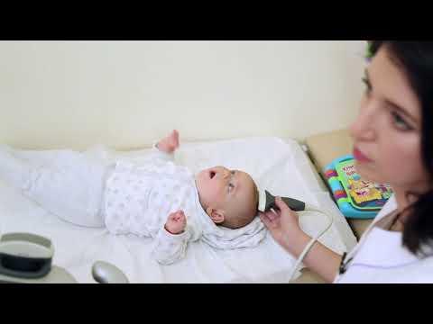 Нейросонография (УЗИ головного мозга) ребенку до года – рассказ врача УЗИ