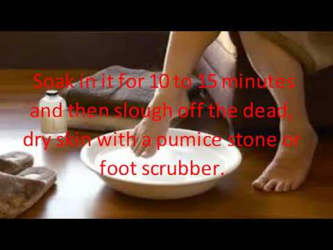 remedies for painful cracked feetgolkes