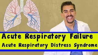 acute respiratory failure vs ards part 5 for nursing students