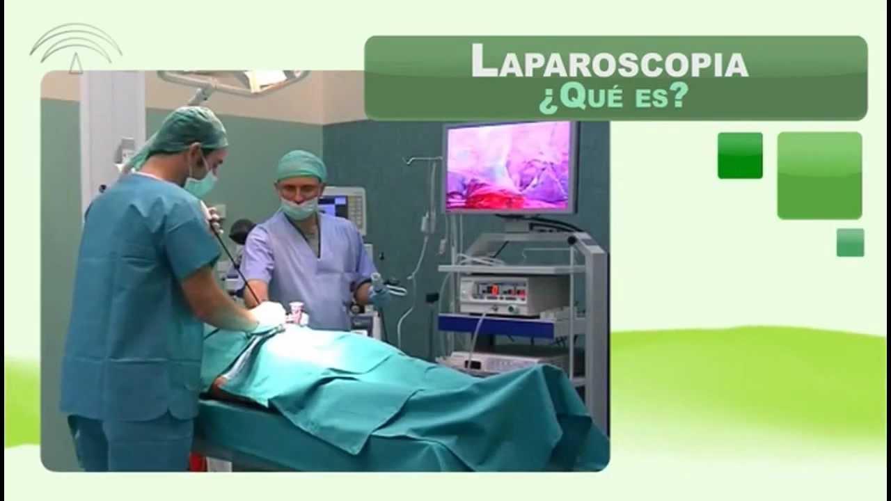 Laparoscopia (Técnicas quirúrgicas) - YouTube