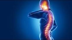 CBD (Cannabidiol) for spinal cord injury.