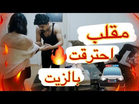 مقلب بزوجي 👌🏻 وقع الزيت المغلي علي وتشوهت 🔥 خالد النعيمي