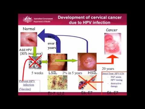 Could a Pap Test Place Not Only Cervical Cancer