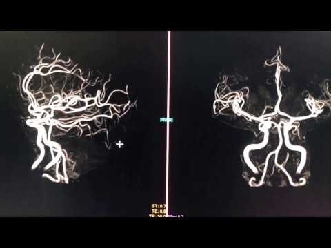 3D Image of the Brain Vasculature (MRA)