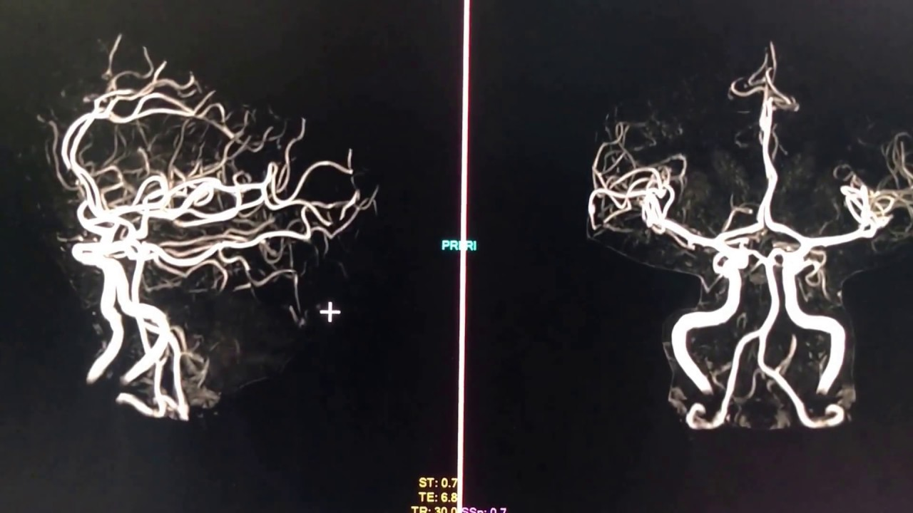 3D Image of the Brain Vasculature (MRA) - YouTube