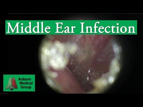 Ear Infection Pain Treatment in an Adult   Auburn Medical Group