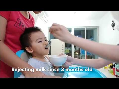 Perils of Toddlers Consuming An Excessive Amount Of Milk