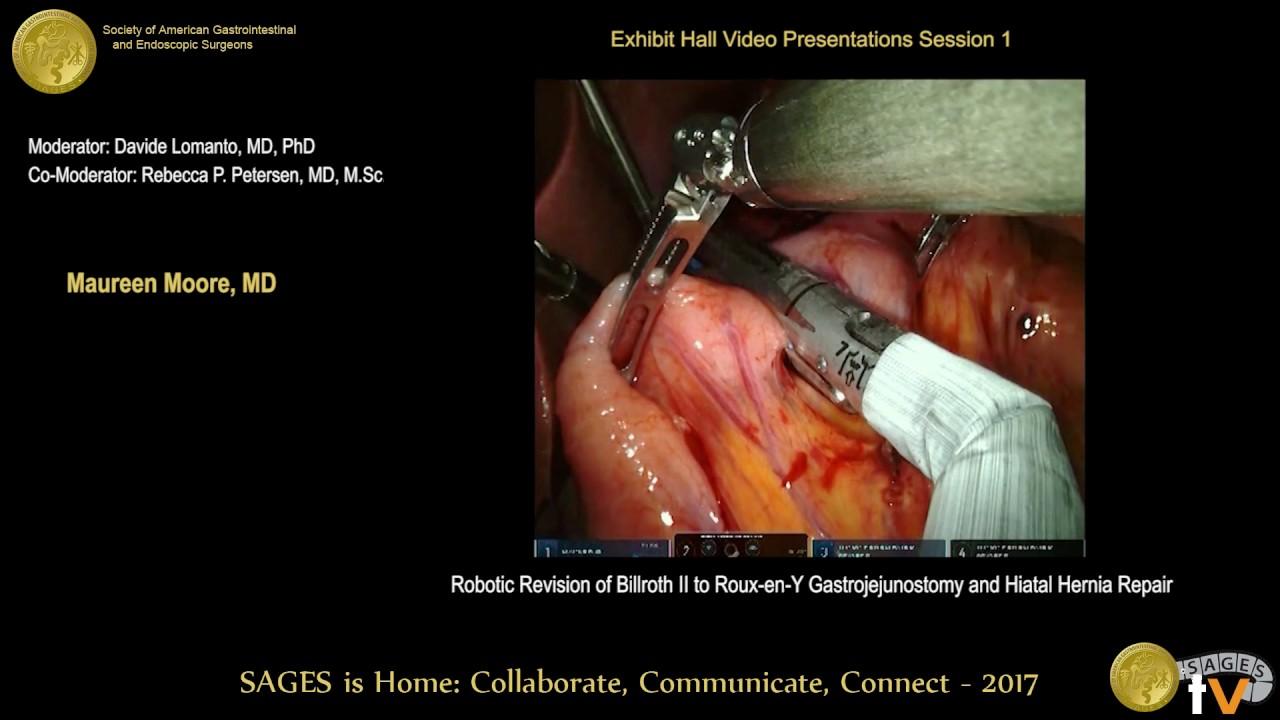 Robotic Revision Of Billroth Ii To Rny Gastrojejunostomy Hiatal