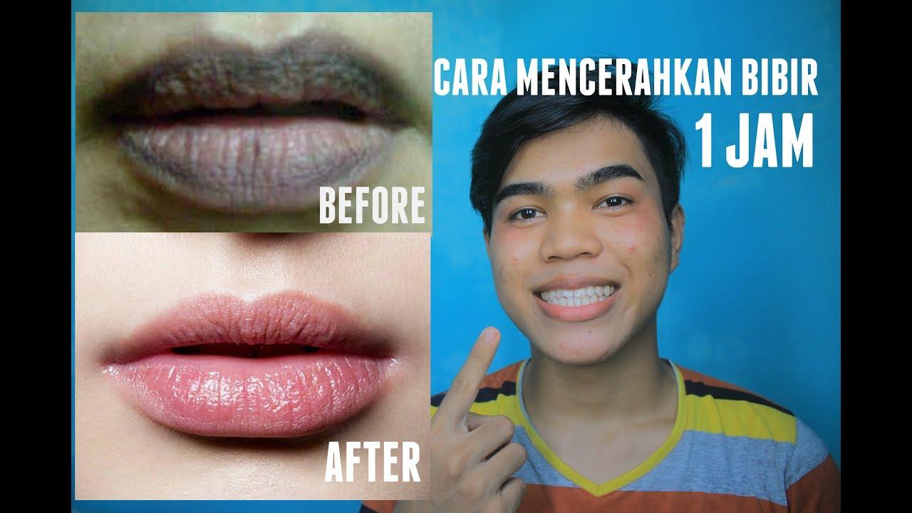 Tips Mencerahkan Bibir Yang Gelap Dengan Cepat Dalam 1 Malam Rahul Efendy