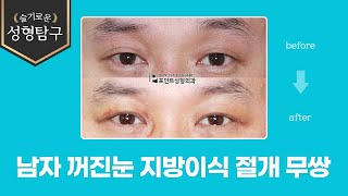남자 꺼진눈 지방이식 절개 무쌍(속쌍꺼풀)