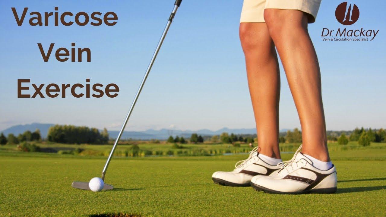 varicose golf deschideți