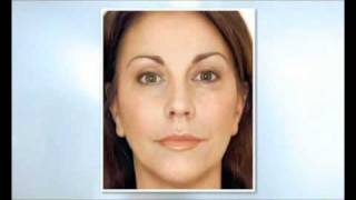 Restylane dermal filler, Norwich, UK Thumbnail