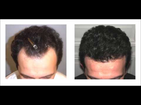 Natural Way To Regrow Lost Hair – How To Use Virgin Coconut Oil For Hair Loss