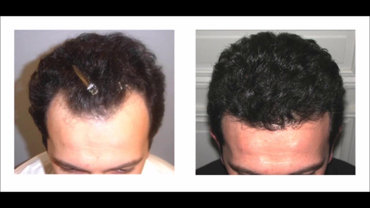 Hair Loss Cure Natural Way