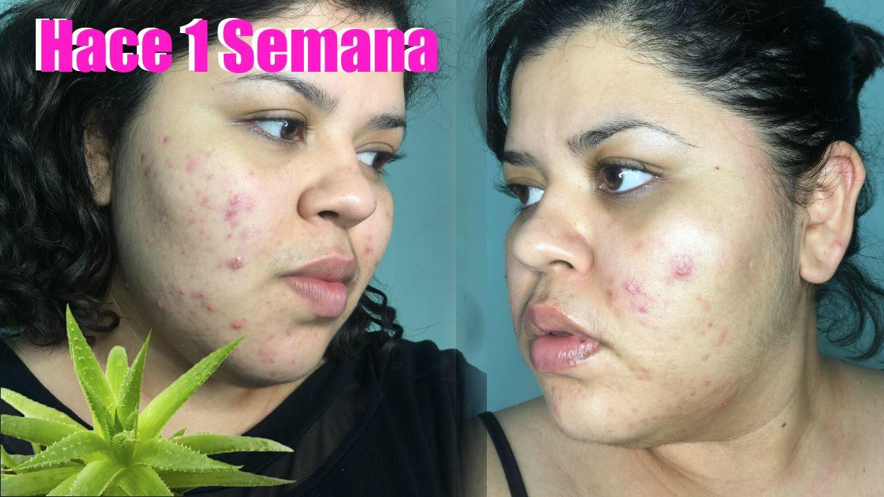 como quitar las manchas del acne en 1 semana