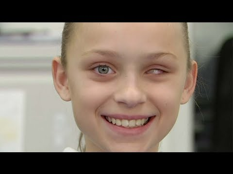 Changing lives with prosthetic eyes