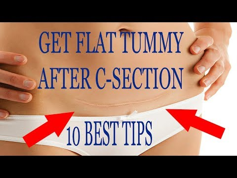 10 Best Tips To Get Flat Tummy After C Section!