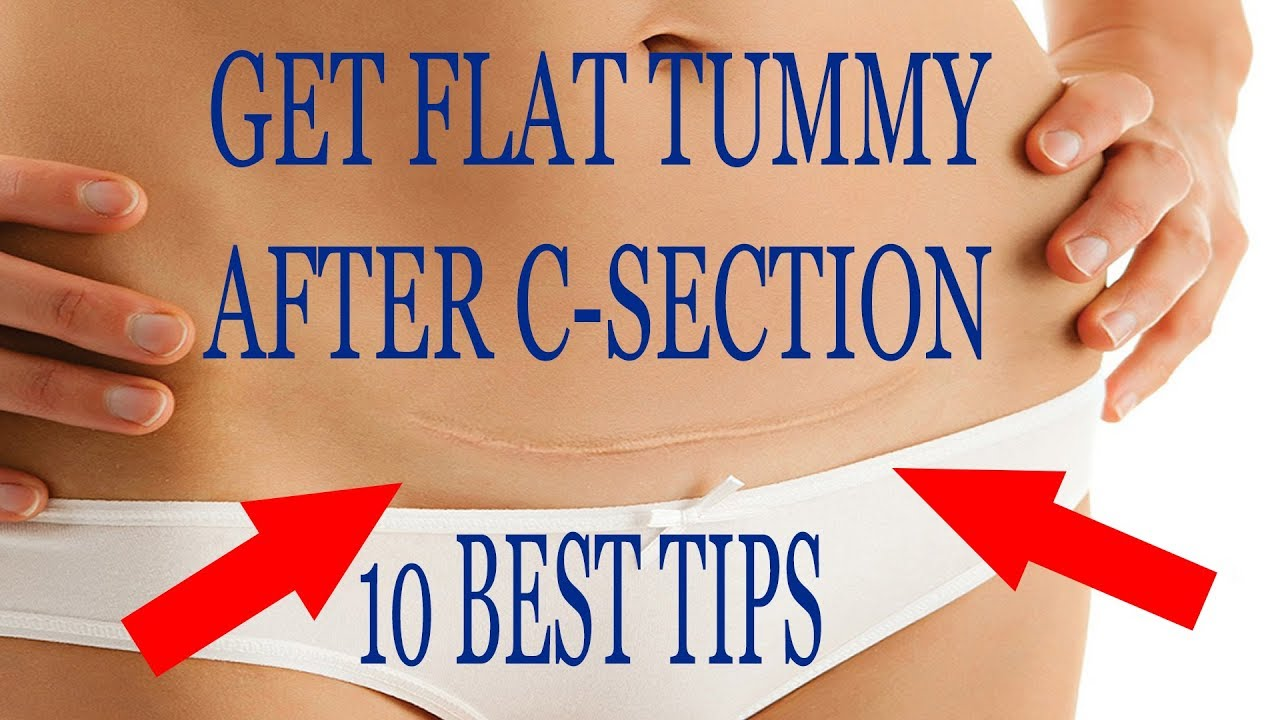 10 Best Tips To Get Flat Tummy After C Section Youtube