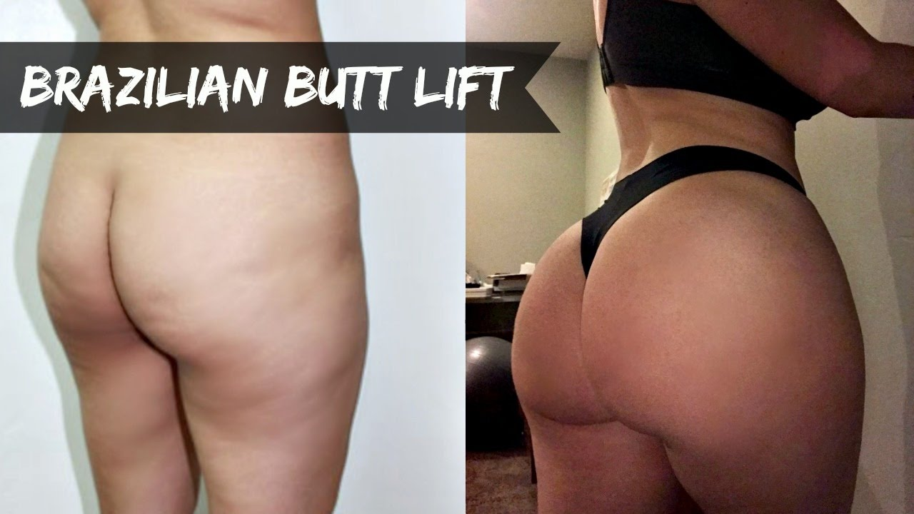 is my butt real? fat transfer/bbl ✖ my experience - youtube